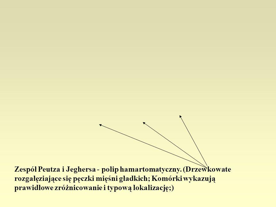 Zespół Peutza i Jeghersa - polip hamartomatyczny