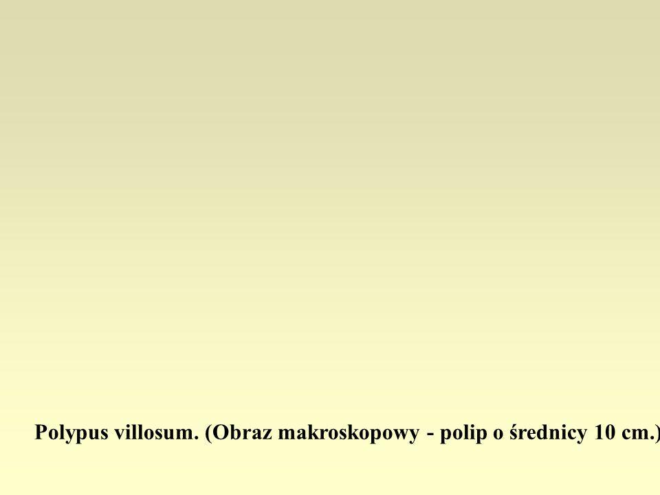 Polypus villosum. (Obraz makroskopowy - polip o średnicy 10 cm.)