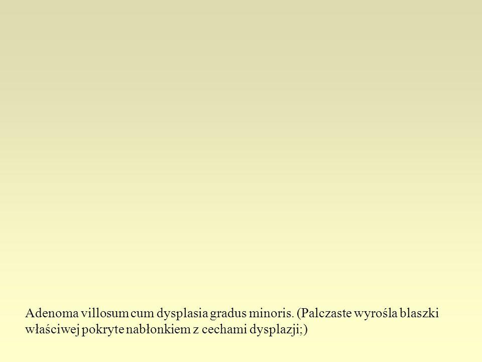 Adenoma villosum cum dysplasia gradus minoris