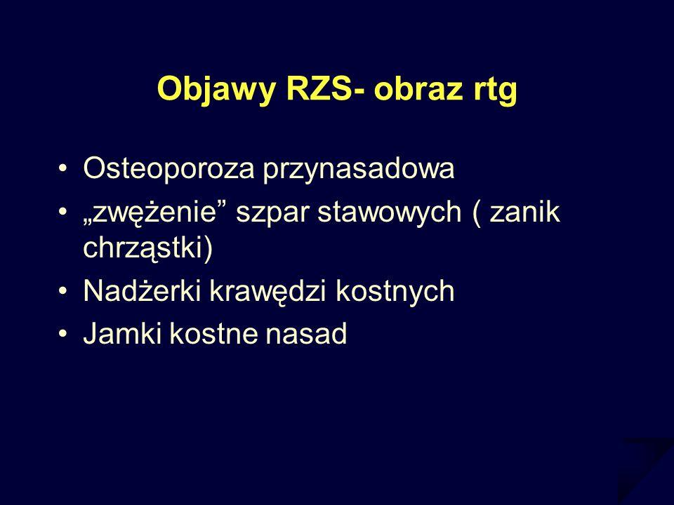 Objawy RZS- obraz rtg Osteoporoza przynasadowa