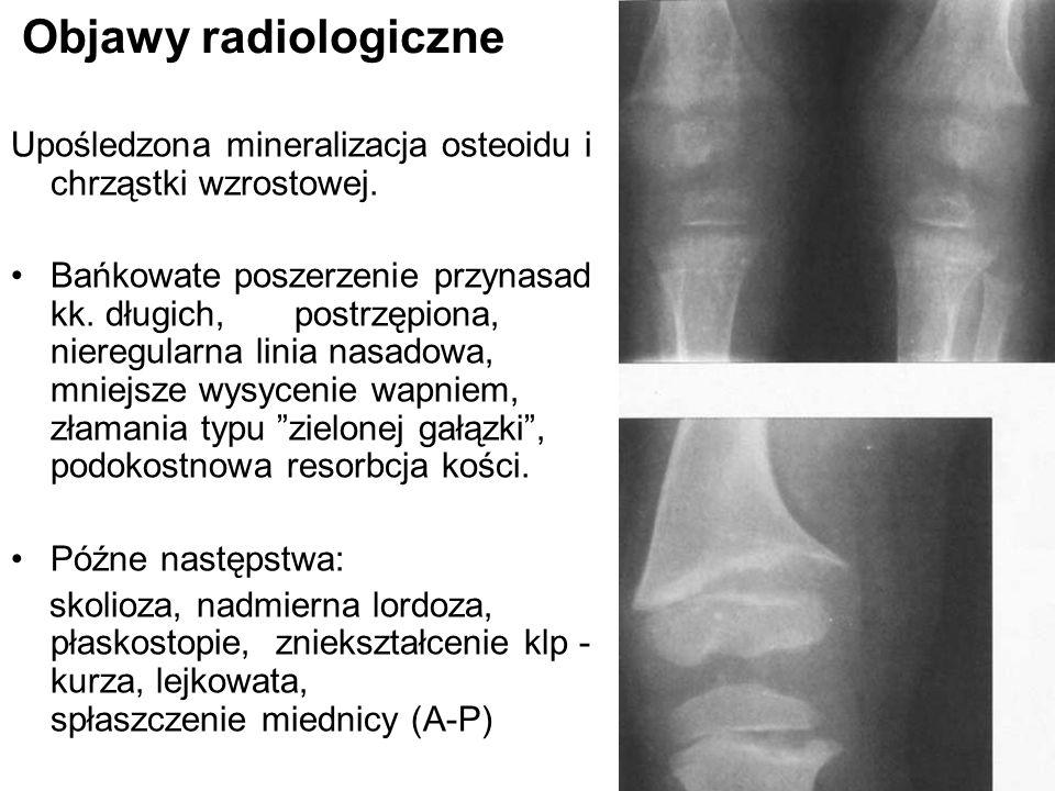 Objawy radiologiczne Upośledzona mineralizacja osteoidu i chrząstki wzrostowej.