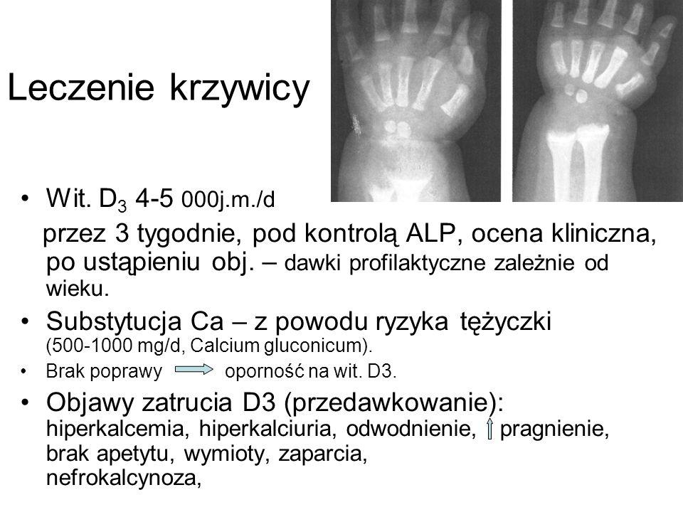 Leczenie krzywicy Wit. D3 4-5 000j.m./d