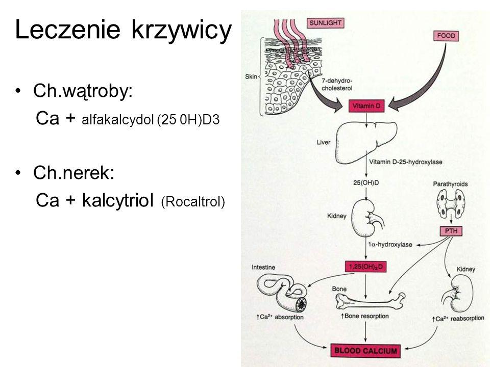 Leczenie krzywicy Ch.wątroby: Ca + alfakalcydol (25 0H)D3 Ch.nerek: