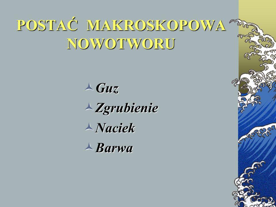 POSTAĆ MAKROSKOPOWA NOWOTWORU