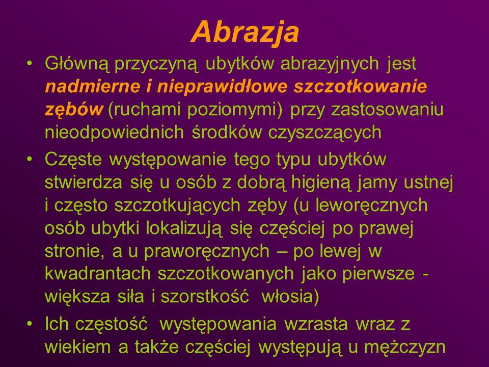 Abrazja