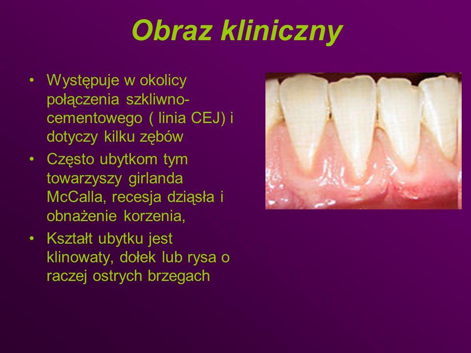 Obraz kliniczny Występuje w okolicy połączenia szkliwno-cementowego ( linia CEJ) i dotyczy kilku zębów.