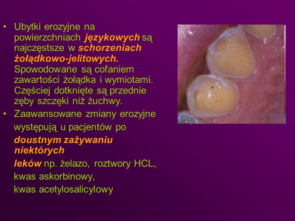 Ubytki erozyjne na powierzchniach językowych są najczęstsze w schorzeniach żołądkowo-jelitowych. Spowodowane są cofaniem zawartości żołądka i wymiotami. Częściej dotknięte są przednie zęby szczęki niż żuchwy.