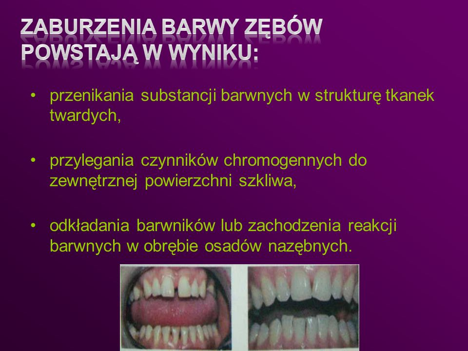Zaburzenia barwy zębów powstają w wyniku: