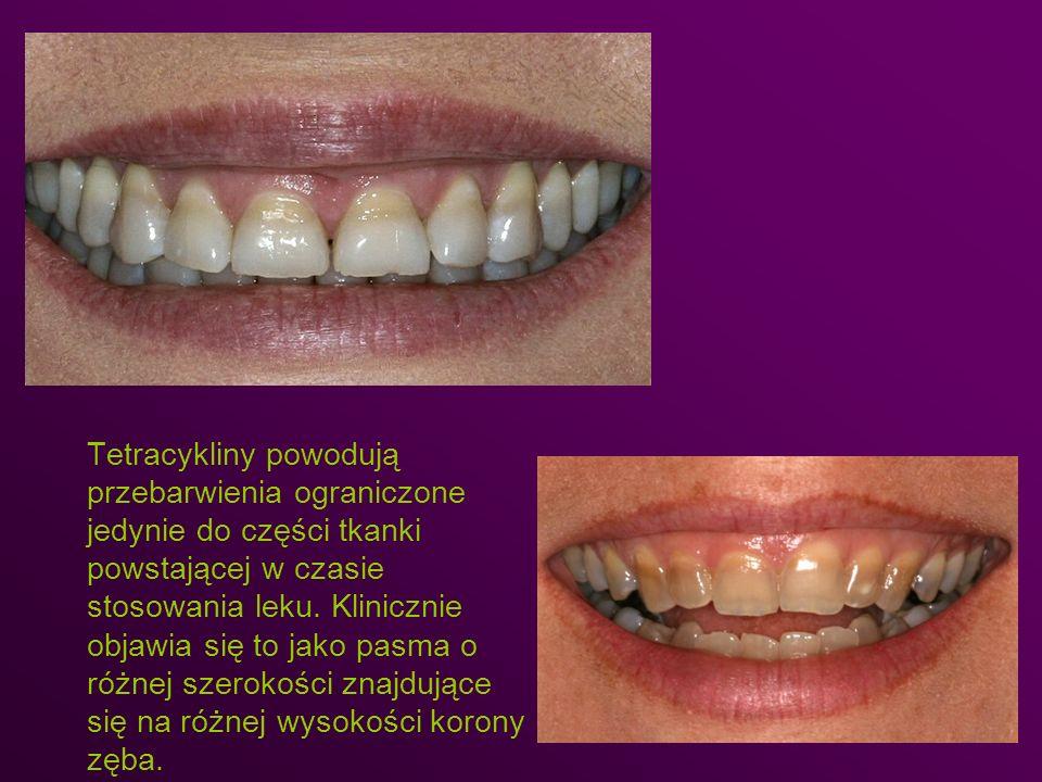 Tetracykliny powodują przebarwienia ograniczone jedynie do części tkanki powstającej w czasie stosowania leku. Klinicznie objawia się to jako pasma o różnej szerokości znajdujące się na różnej wysokości korony zęba.