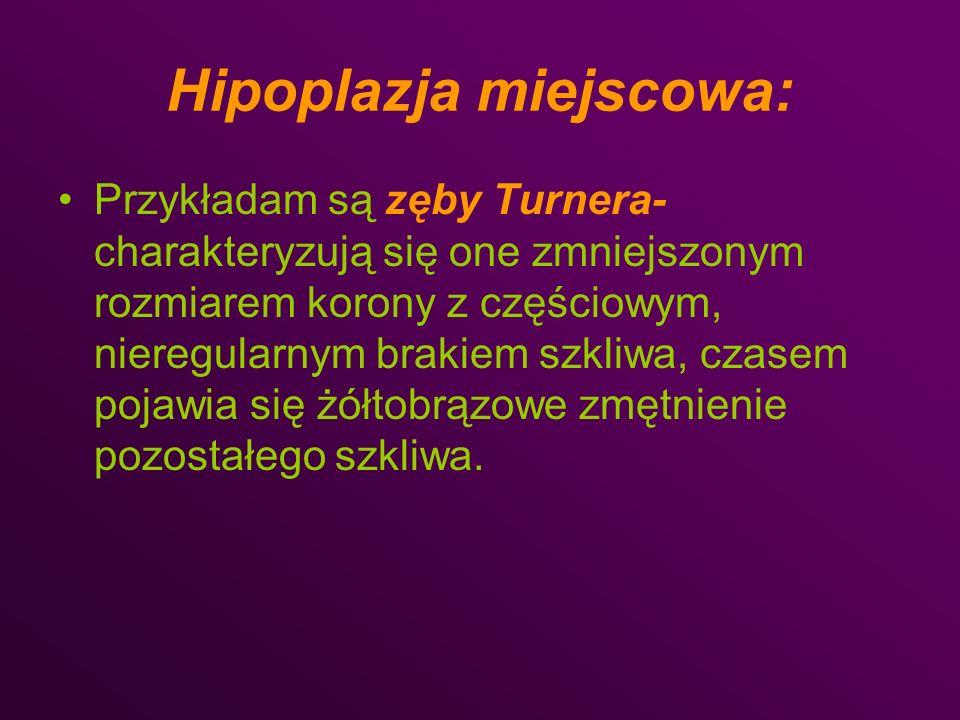 Hipoplazja miejscowa: