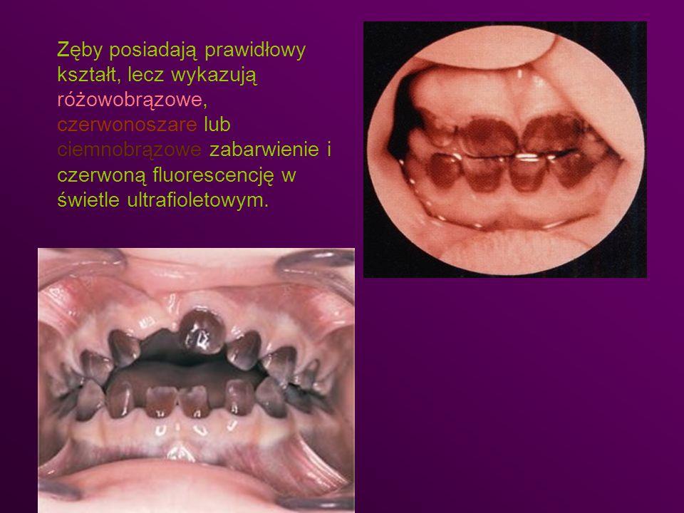 Zęby posiadają prawidłowy kształt, lecz wykazują różowobrązowe, czerwonoszare lub ciemnobrązowe zabarwienie i czerwoną fluorescencję w świetle ultrafioletowym.