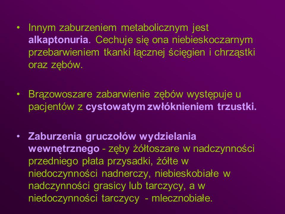 Innym zaburzeniem metabolicznym jest alkaptonuria