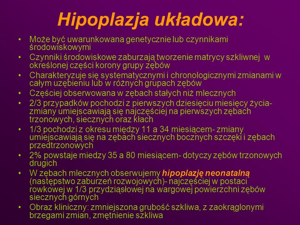 Hipoplazja układowa: Może być uwarunkowana genetycznie lub czynnikami środowiskowymi.