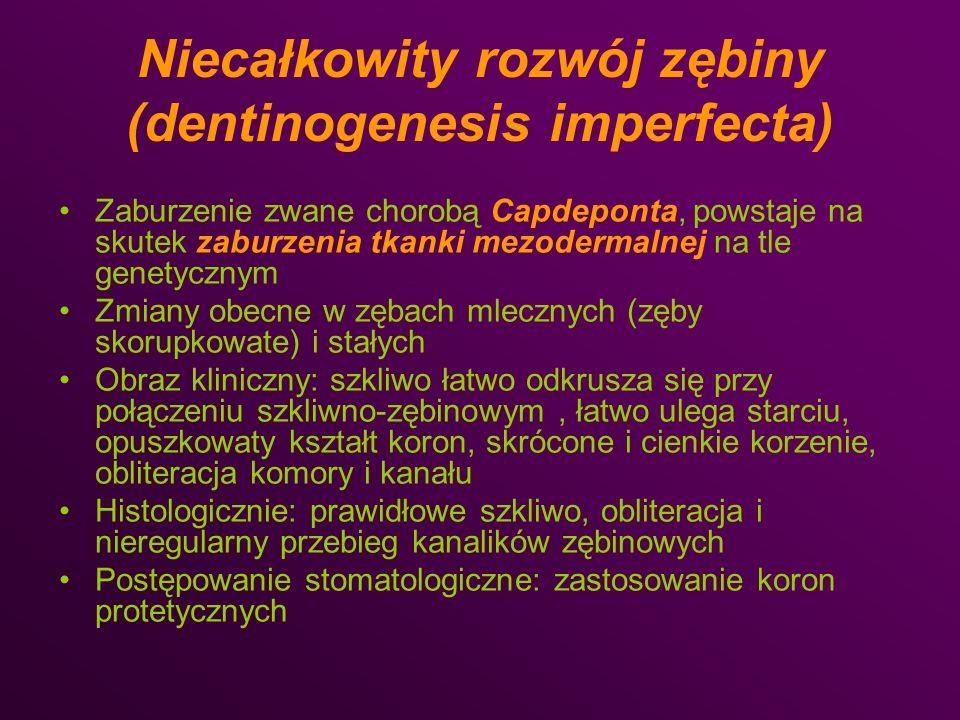 Niecałkowity rozwój zębiny (dentinogenesis imperfecta)