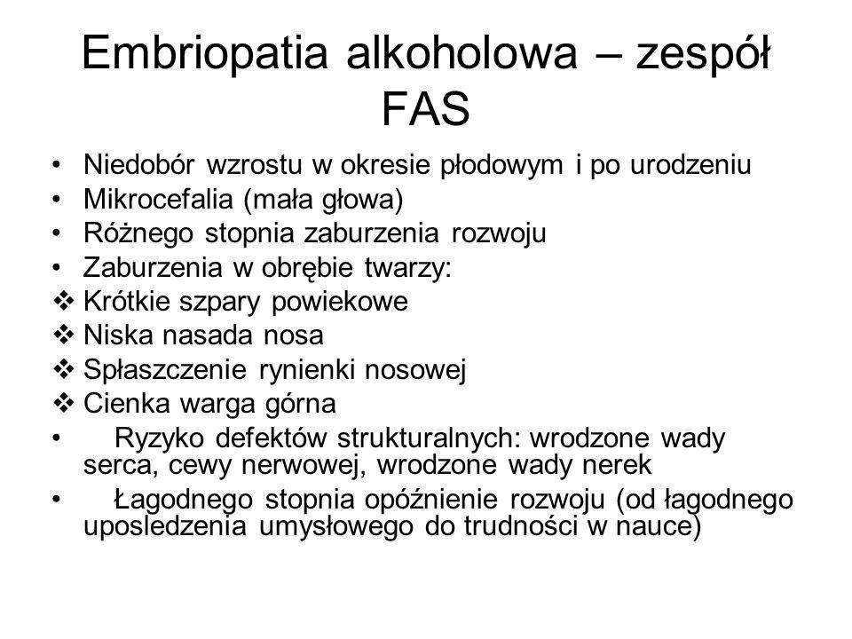 Embriopatia alkoholowa – zespół FAS