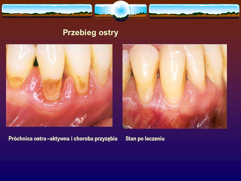 Przebieg ostry Próchnica ostra –aktywna i choroba przyzębia Stan po leczeniu