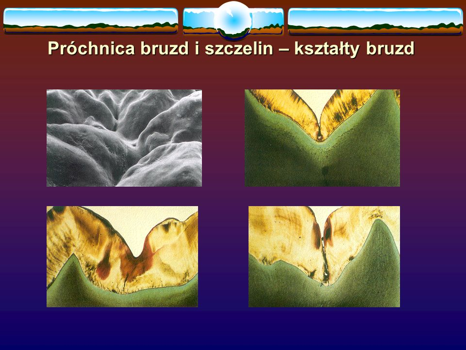 Próchnica bruzd i szczelin – kształty bruzd
