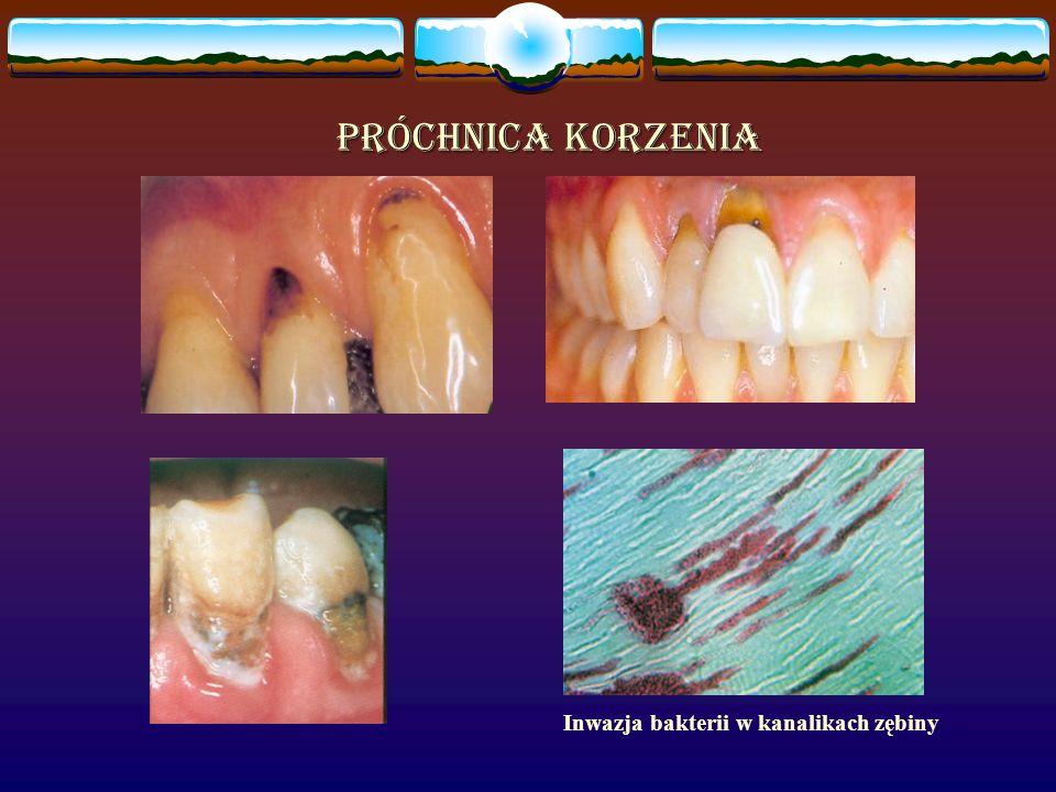 Próchnica korzenia Inwazja bakterii w kanalikach zębiny