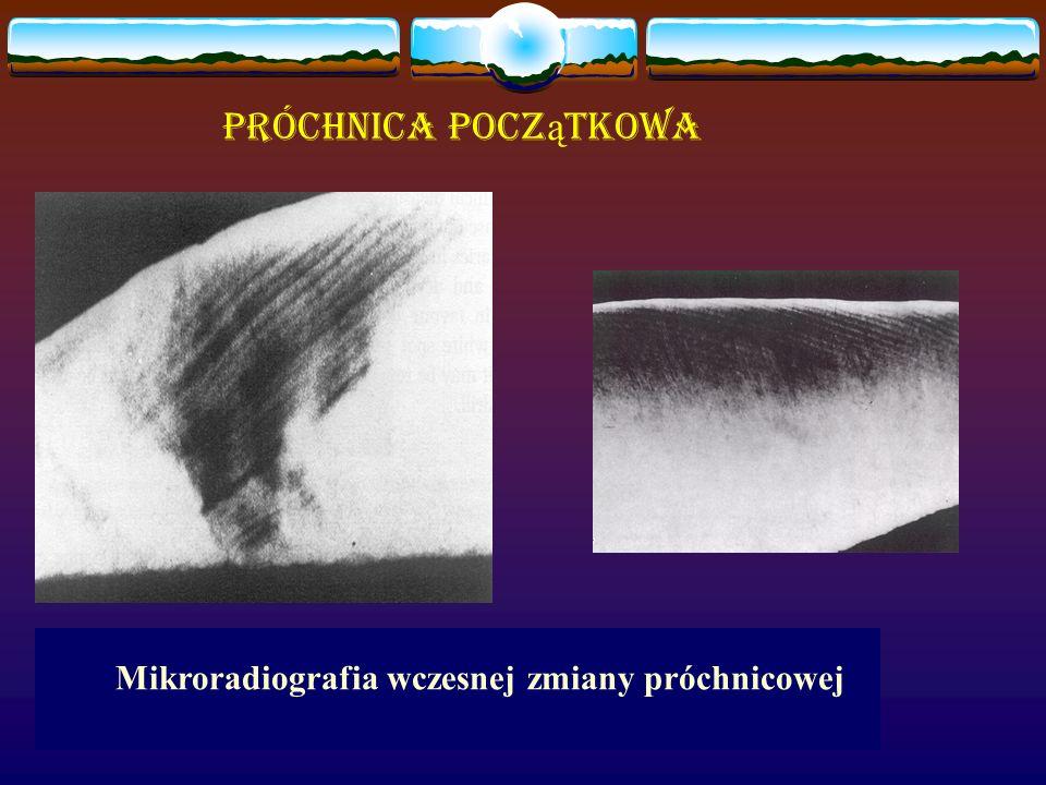 Próchnica początkowa Mikroradiografia wczesnej zmiany próchnicowej