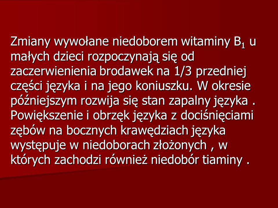 Zmiany wywołane niedoborem witaminy B1 u małych dzieci rozpoczynają się od zaczerwienienia brodawek na 1/3 przedniej części języka i na jego koniuszku.