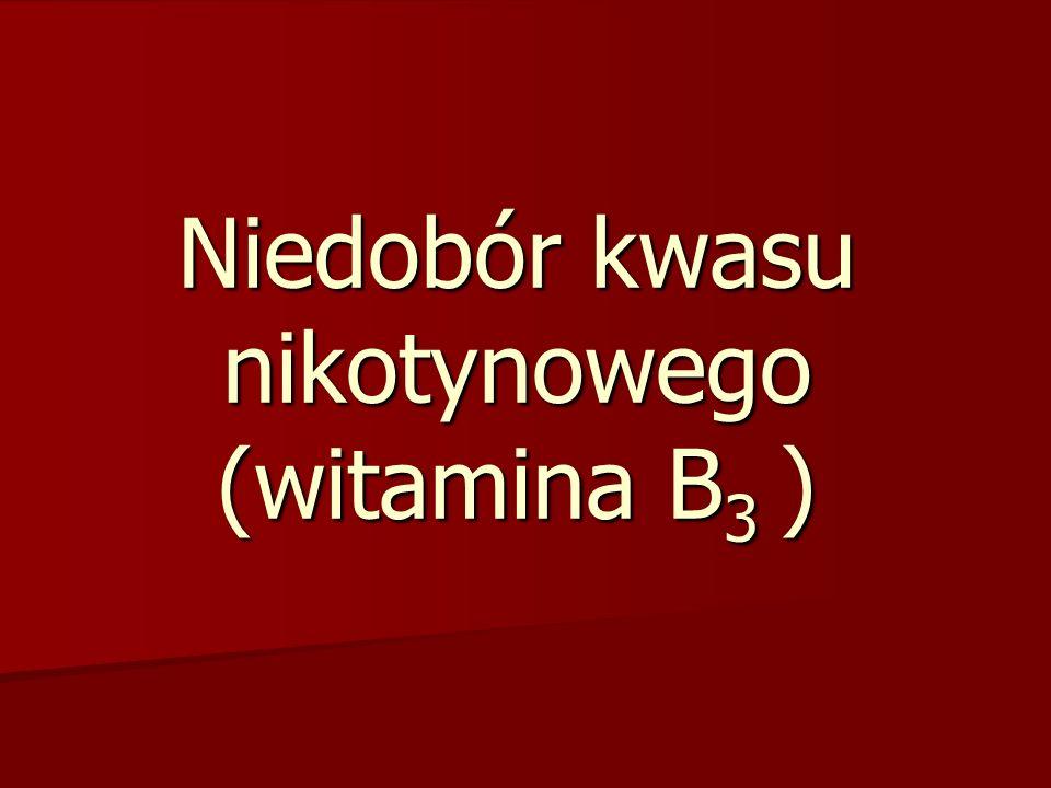 Niedobór kwasu nikotynowego (witamina B3 )
