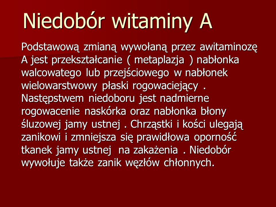 Niedobór witaminy A