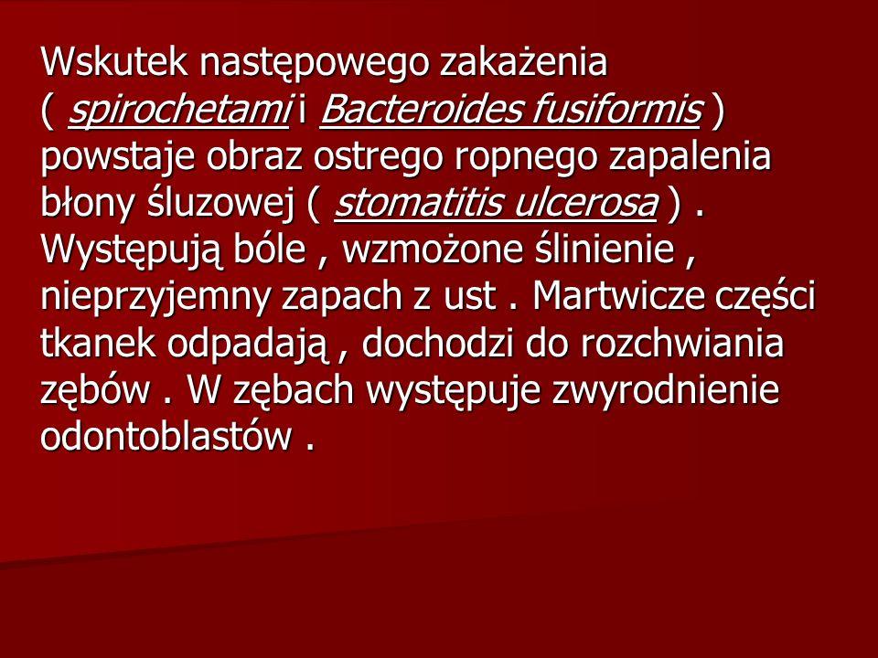 Wskutek następowego zakażenia ( spirochetami i Bacteroides fusiformis ) powstaje obraz ostrego ropnego zapalenia błony śluzowej ( stomatitis ulcerosa ) .