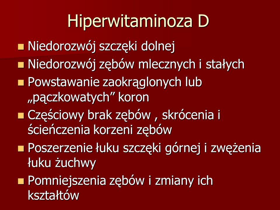 Hiperwitaminoza D Niedorozwój szczęki dolnej