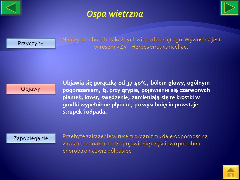 Ospa wietrzna Należy do chorób zakaźnych wieku dziecięcego. Wywołana jest wirusem VZV - Herpes virus varicellae.