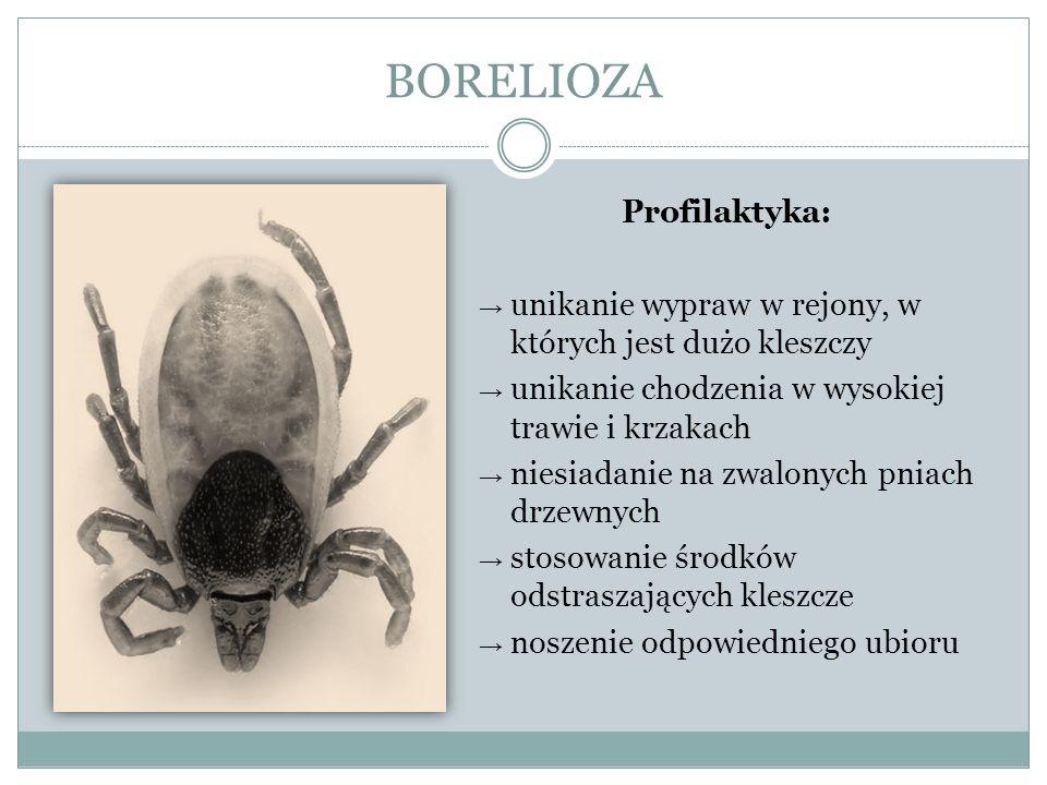 BORELIOZA Profilaktyka:
