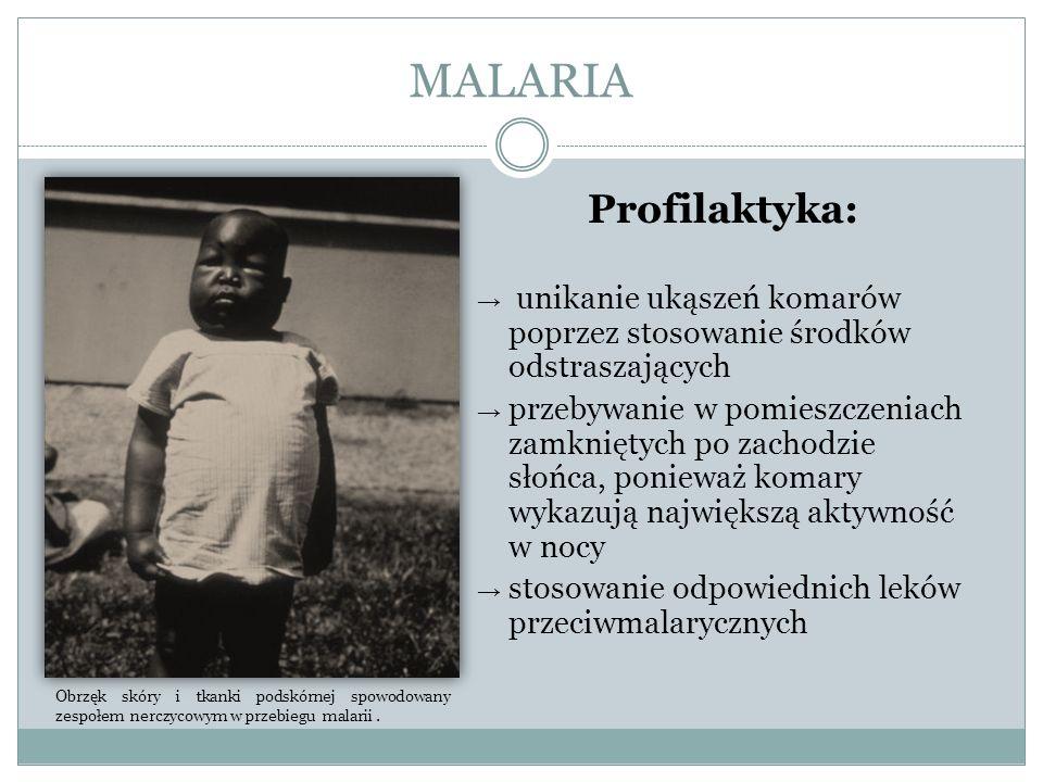 MALARIA Profilaktyka:
