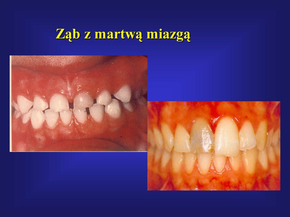 Ząb z martwą miazgą