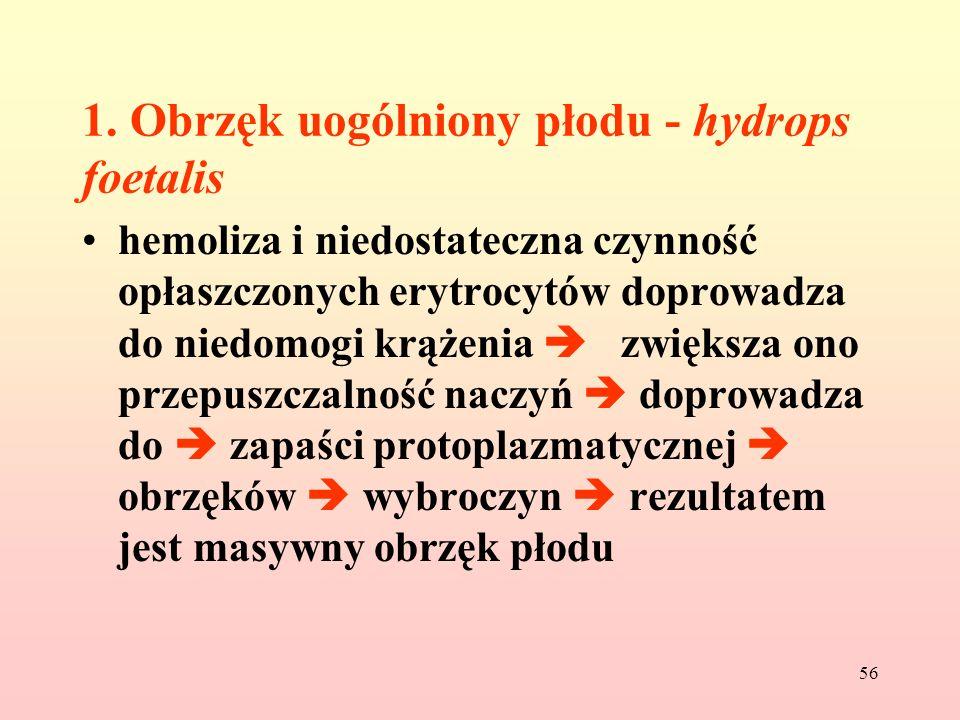 1. Obrzęk uogólniony płodu - hydrops foetalis