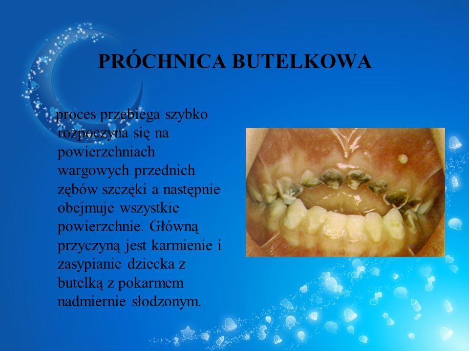 PRÓCHNICA BUTELKOWA