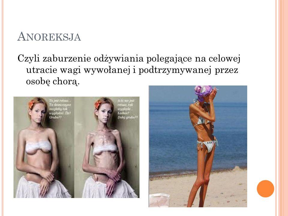 Anoreksja Czyli zaburzenie odżywiania polegające na celowej utracie wagi wywołanej i podtrzymywanej przez osobę chorą.