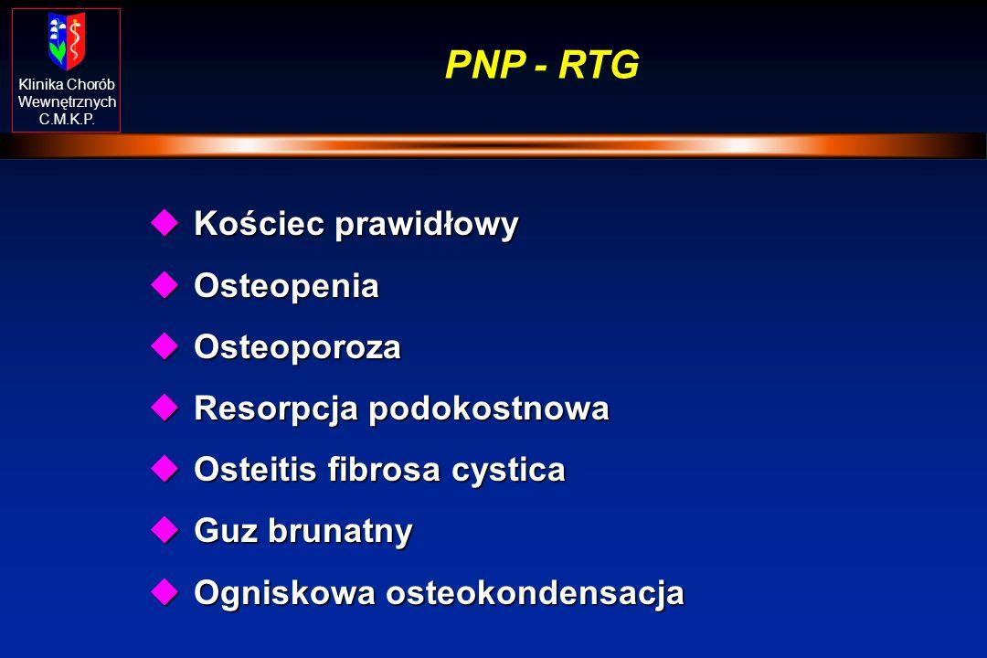 PNP - RTG Kościec prawidłowy Osteopenia Osteoporoza