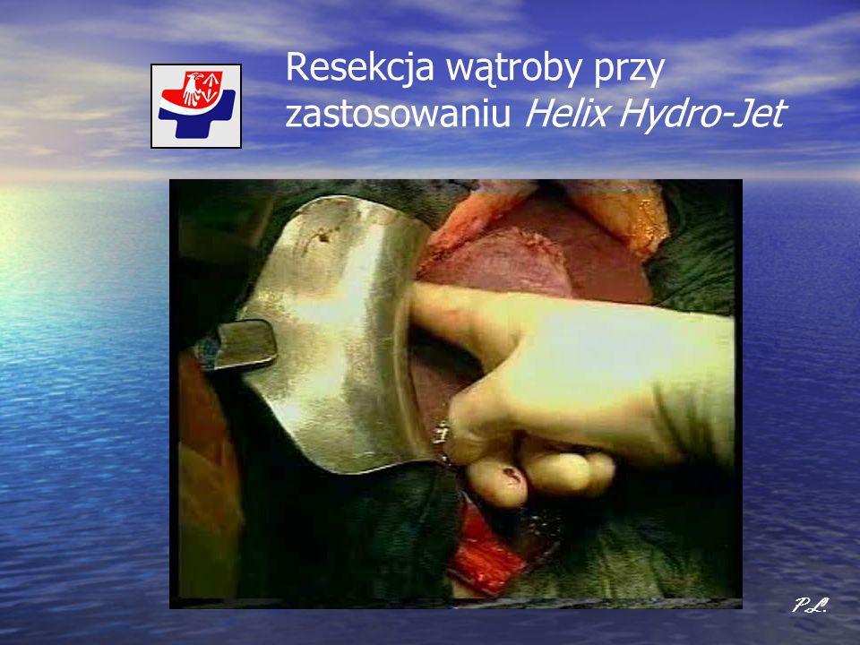 Resekcja wątroby przy zastosowaniu Helix Hydro-Jet