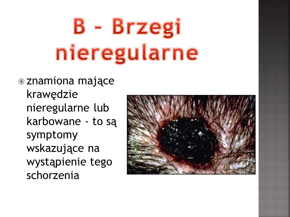 B – Brzegi nieregularne