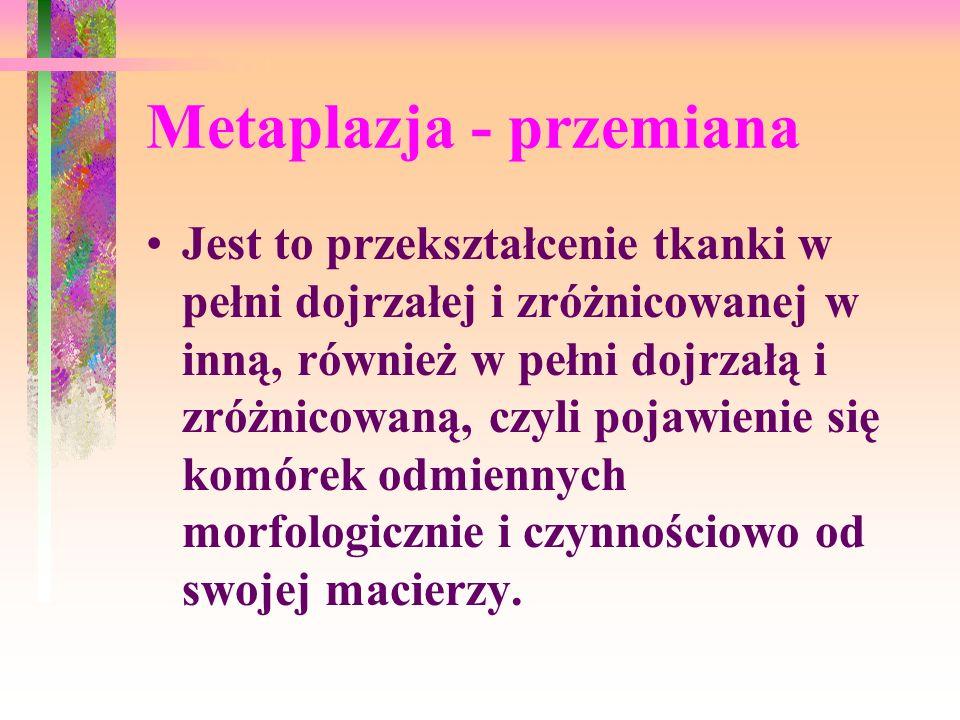 Metaplazja - przemiana