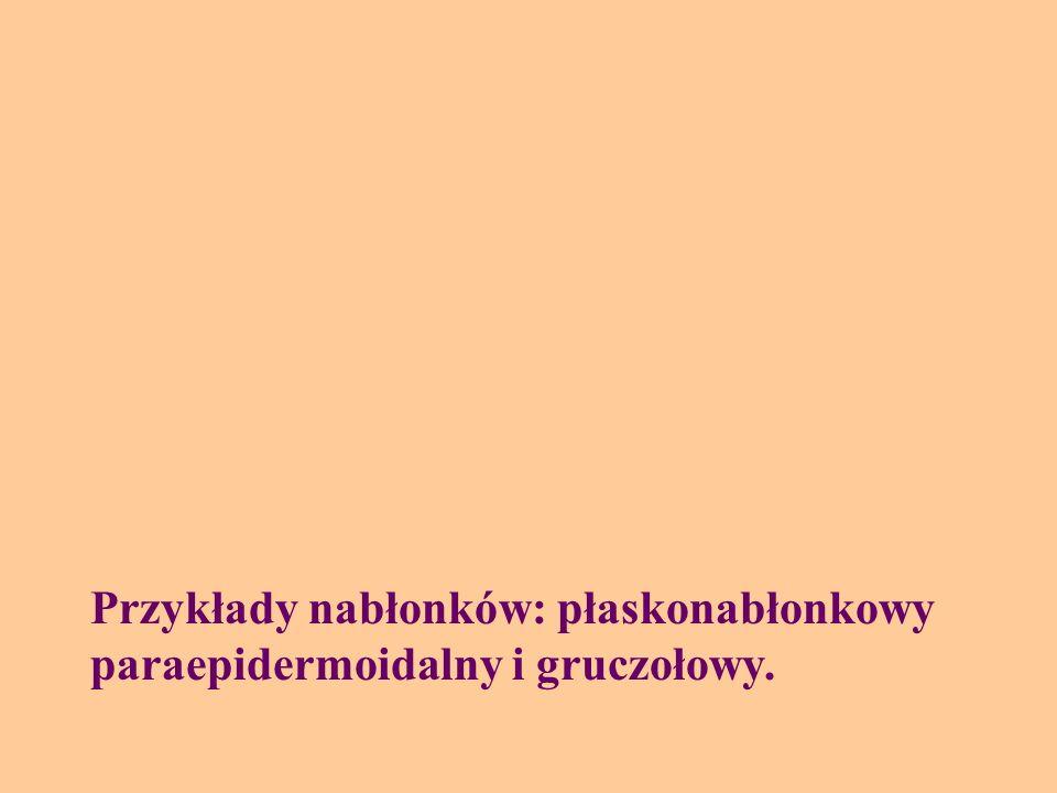 Przykłady nabłonków: płaskonabłonkowy paraepidermoidalny i gruczołowy.