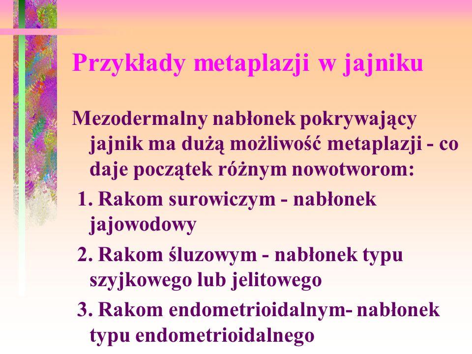 Przykłady metaplazji w jajniku