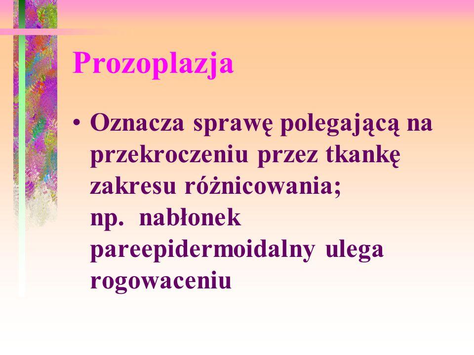 Prozoplazja