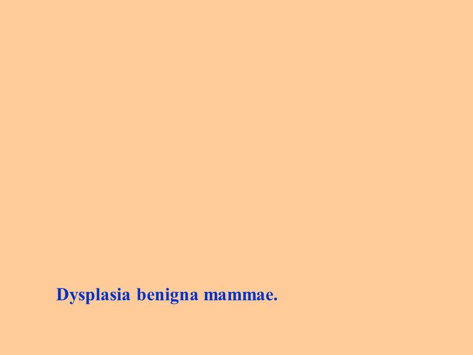 Dysplasia benigna mammae.