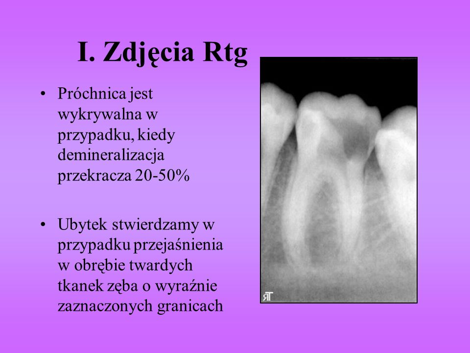 I. Zdjęcia Rtg Próchnica jest wykrywalna w przypadku, kiedy demineralizacja przekracza 20-50%