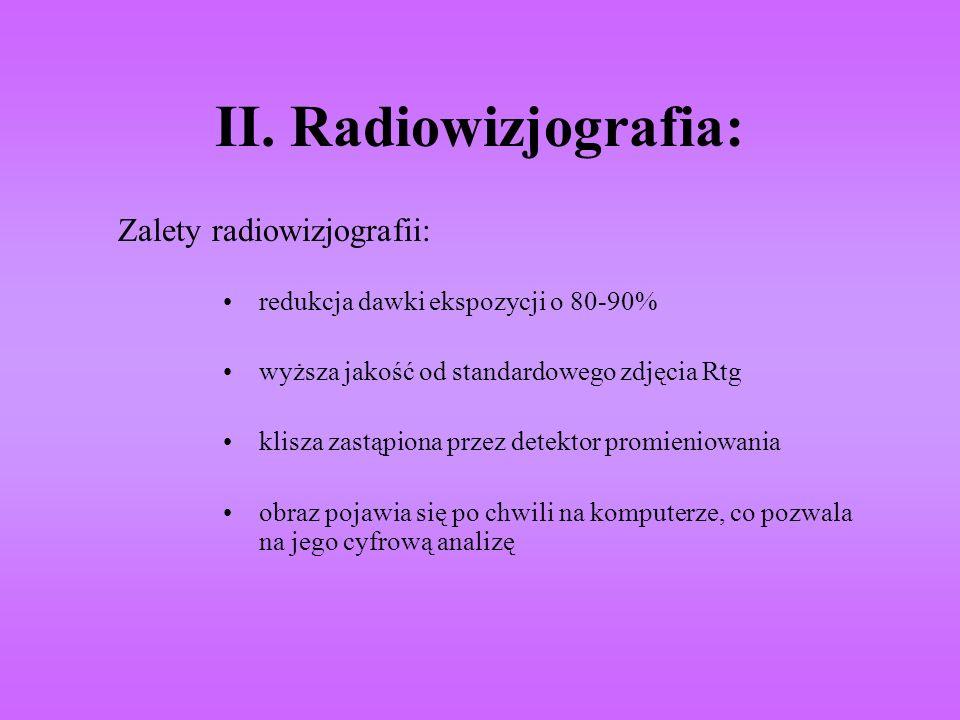 II. Radiowizjografia: Zalety radiowizjografii: