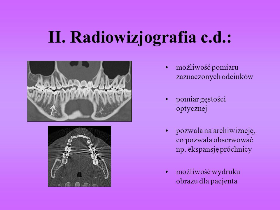II. Radiowizjografia c.d.: