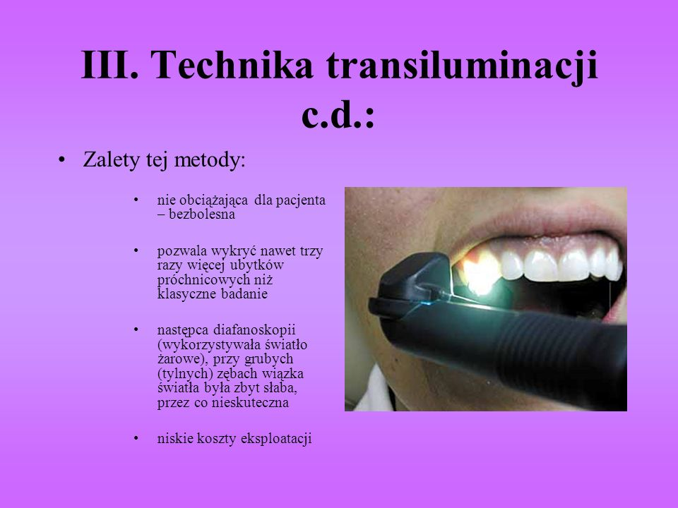 III. Technika transiluminacji c.d.: