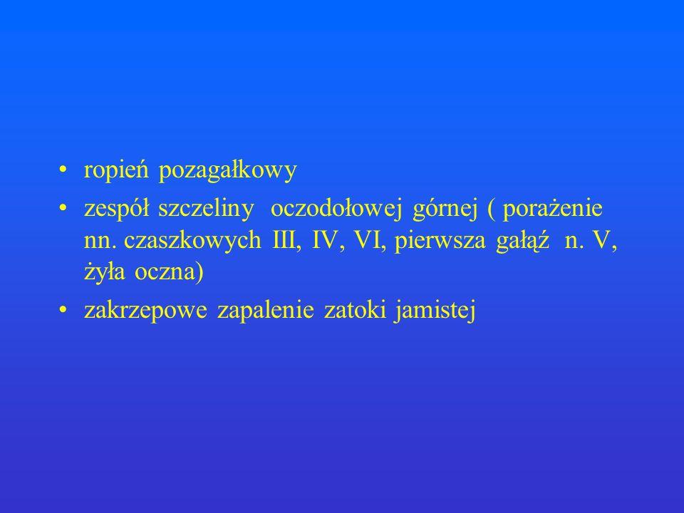 ropień pozagałkowyzespół szczeliny oczodołowej górnej ( porażenie nn. czaszkowych III, IV, VI, pierwsza gałąź n. V, żyła oczna)