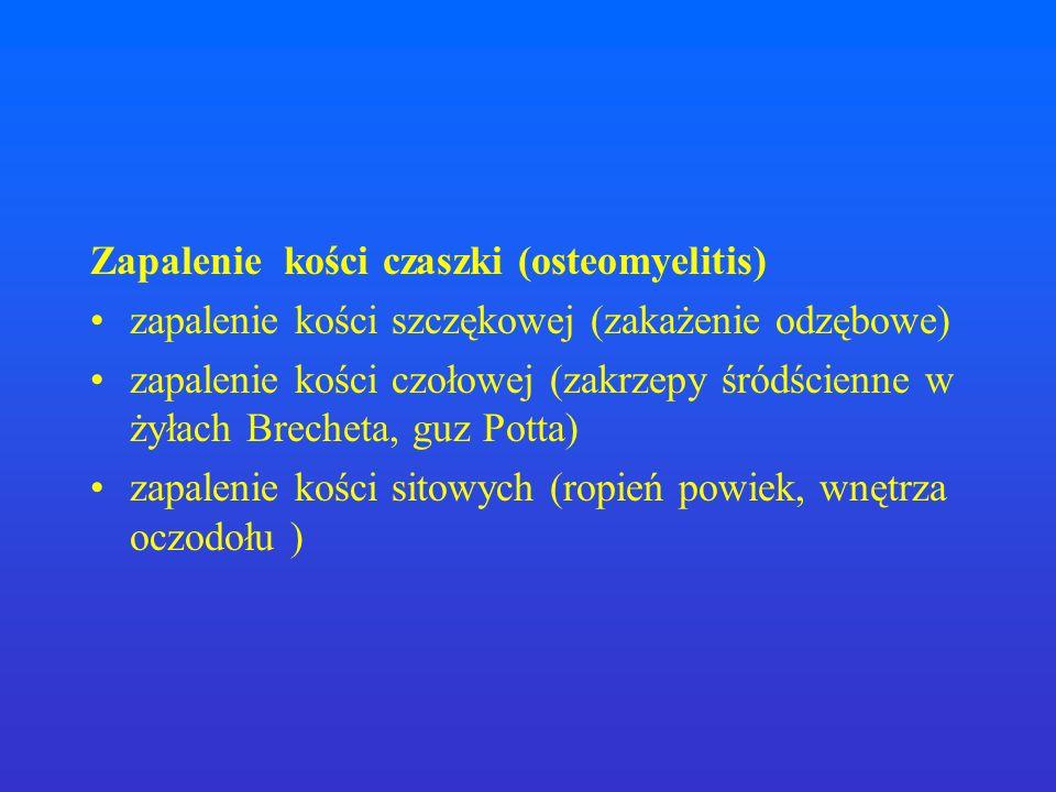 Zapalenie kości czaszki (osteomyelitis)