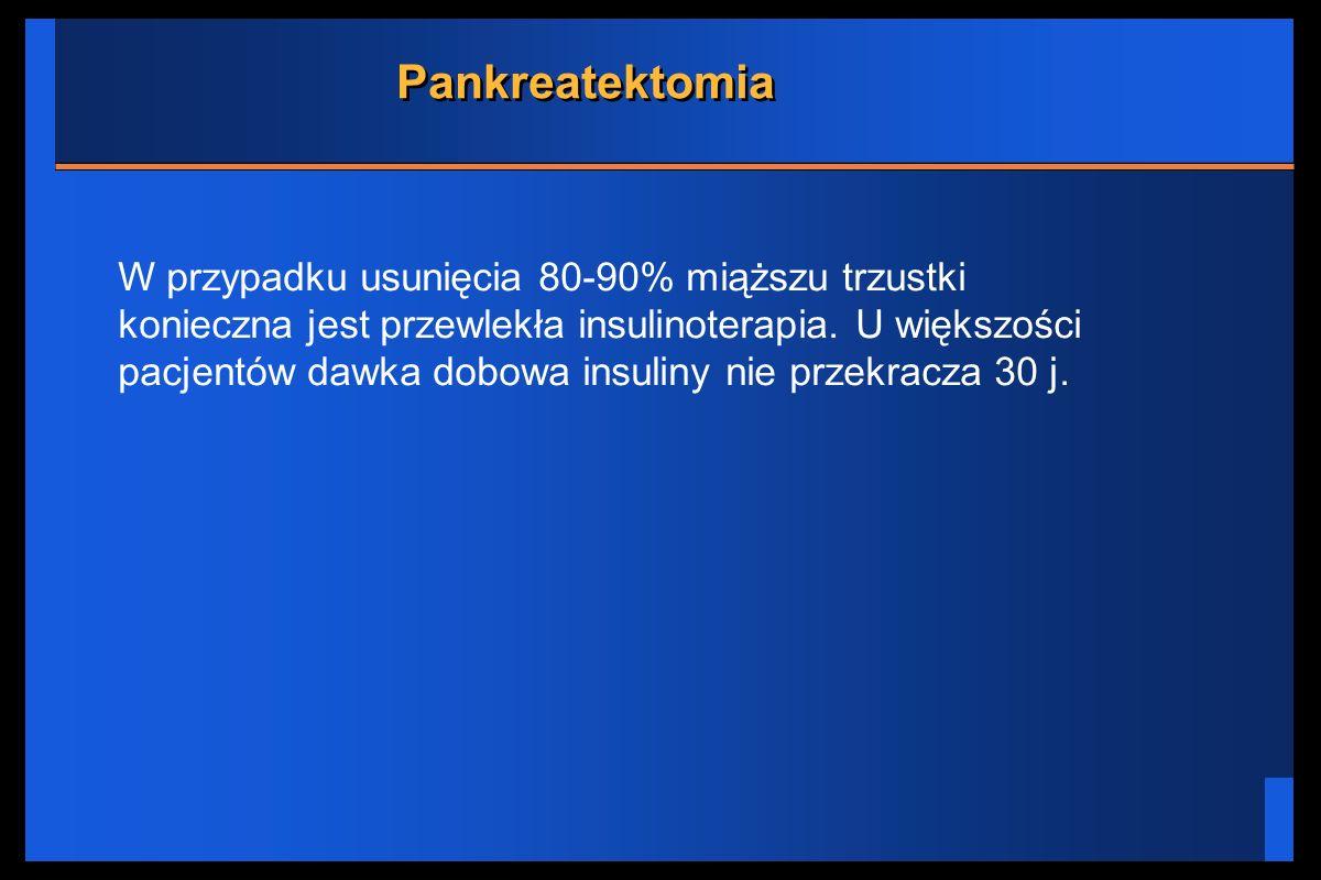 Pankreatektomia